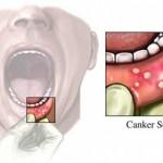 Thuốc dùng trị viêm họng miệng